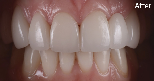 Prodent Care, San Gwann, Malta - Do you have missing teeth which you want to replace