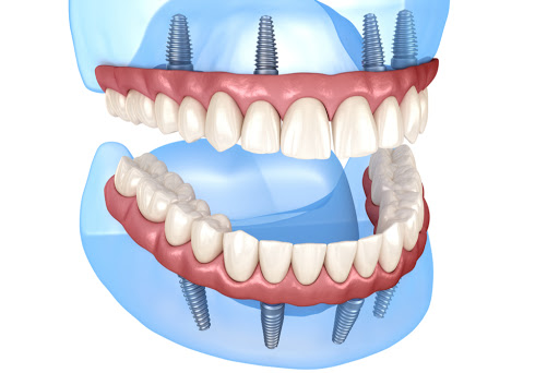 ProDent Care, San Gwann, Malta - Fixed Implant dentures