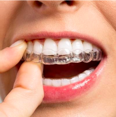 ProDent Care, San Gwann, Malta - Straighten Teeth, Discreetly by Invisalign® Invisible Braces