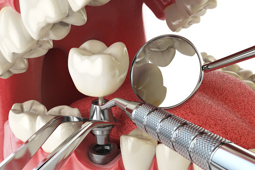 ProDent Care, San Gwann, Malta - Implant Dentistry