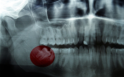 Wisdom Tooth: What Are The Problems You Could Face And How Are They Solved?