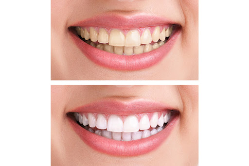 ProDent Care, San Gwann, Malta - Teeth Whitening